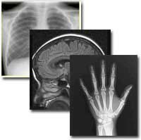 Image of multiple x-ray images